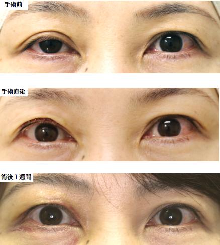 眼瞼下垂写真