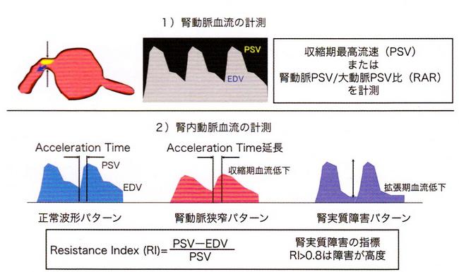 腎動脈血流の測定