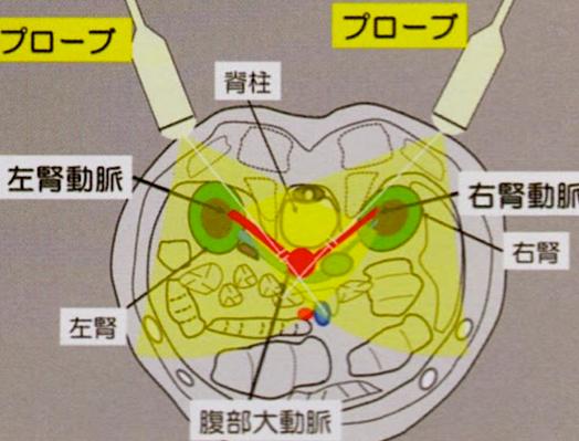 腎動脈エコー