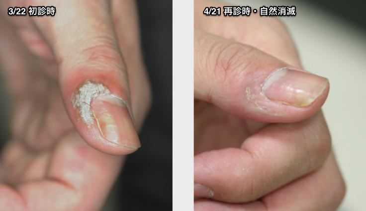 左手 親指 2