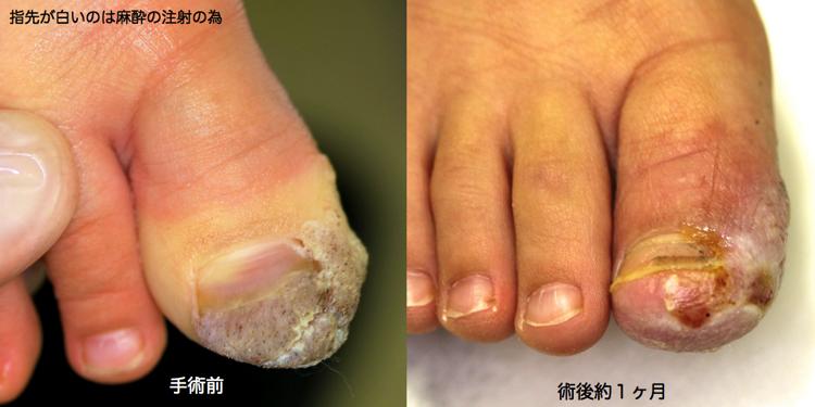 親指イボ 術前術後1
