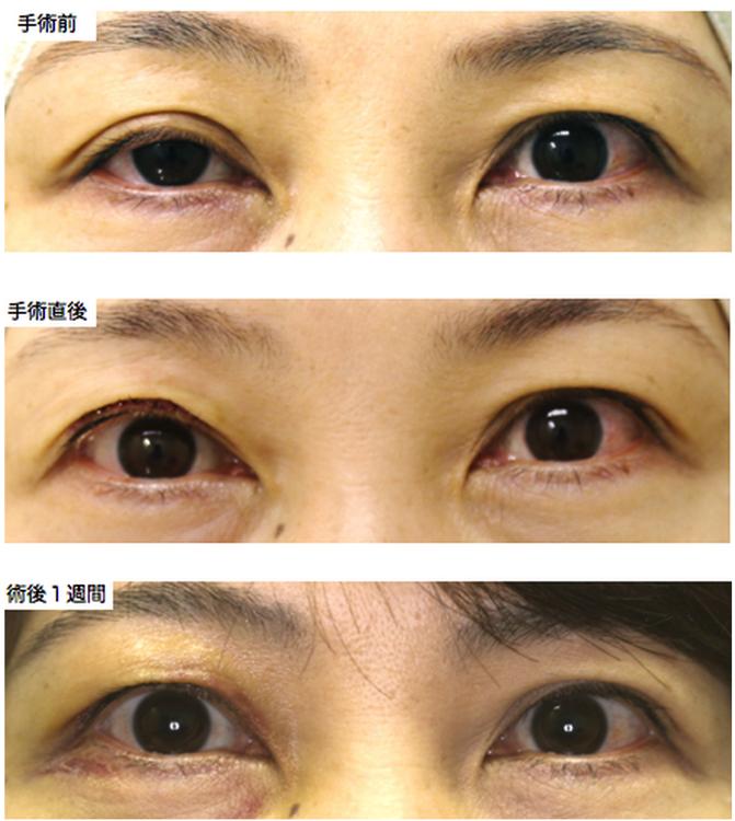 眼瞼下垂 症例写真 星の原クリニック 福岡市早良区