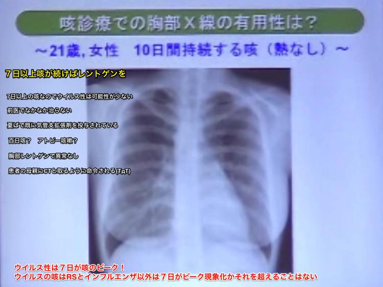 咳診療での胸部レントゲンの有用性