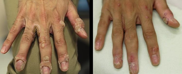 右手の多発性イボ