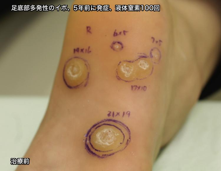 足底部の多発性尋常性疣贅 治療前