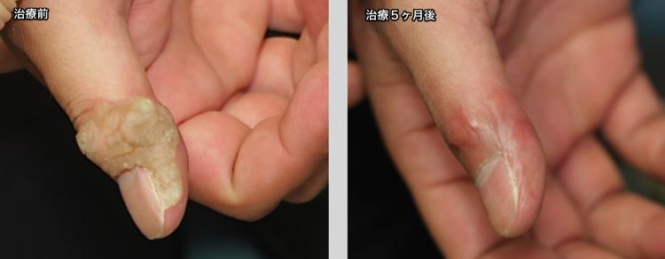 左親指のイボ