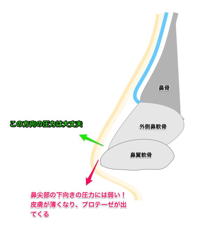 隆鼻術の合併症