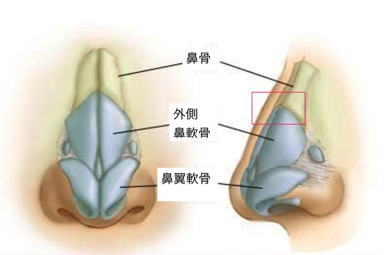 鼻骨 軟骨