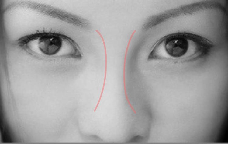 アーチ状の鼻