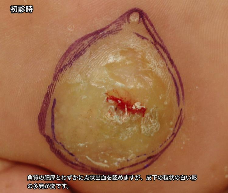 初診 皮下膿瘍