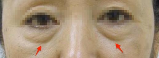 目の下の膨らみ