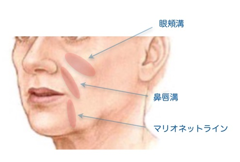 ヒアルロン酸注入部位