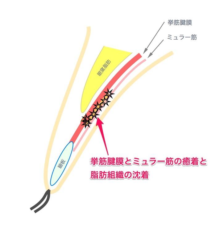 脂肪の沈着 挙筋腱膜とミュラー筋の癒着