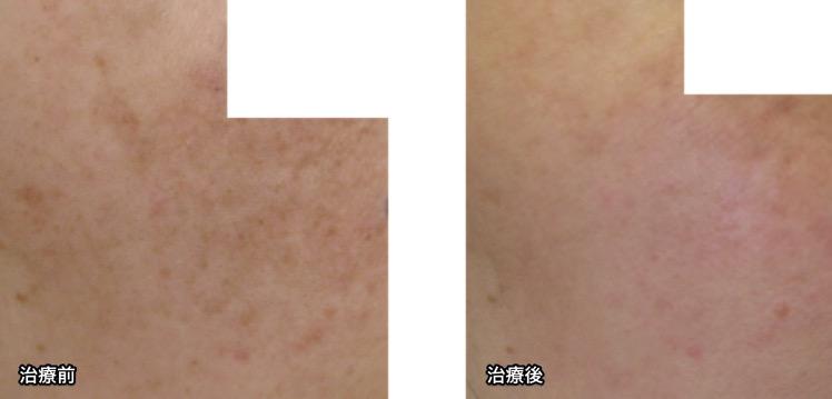 肝斑症例写真