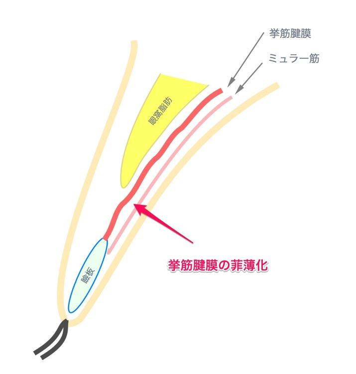 挙筋腱膜の菲薄化