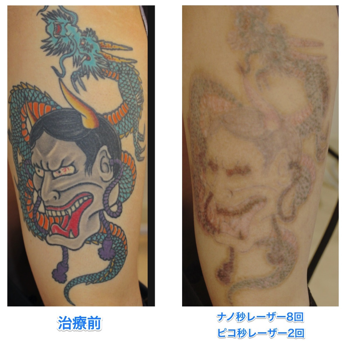 刺青除去 マルチカラー PICOWAY