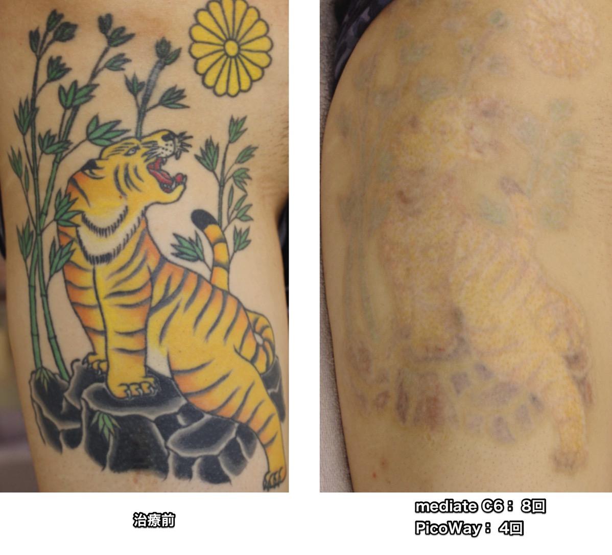 PicoWay マルチカラー 刺青 タトゥー