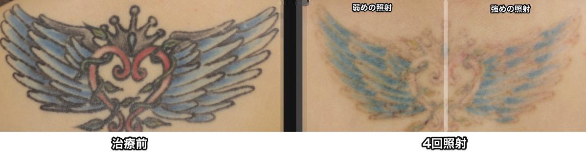 マルチカラー刺青 PicoWay