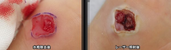 足底イボ 水疱形成薬