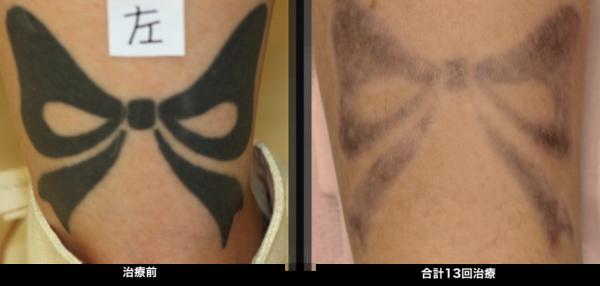 刺青治療13回