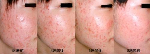 ニキビ治療の写真,福岡