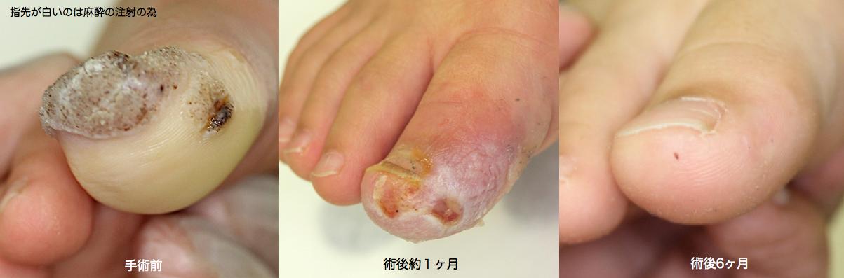 親指イボ術前 術後2