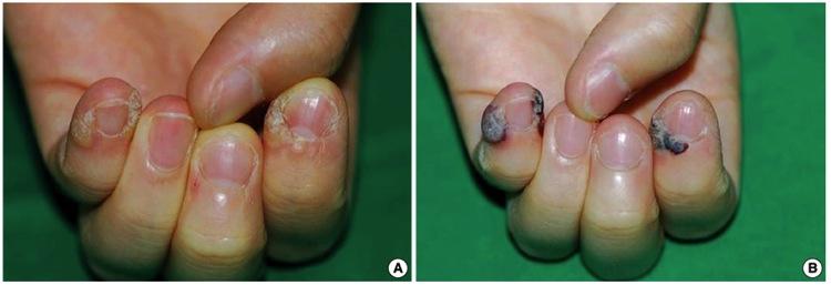 爪周囲 ヤグレーザーによるイボ治療
