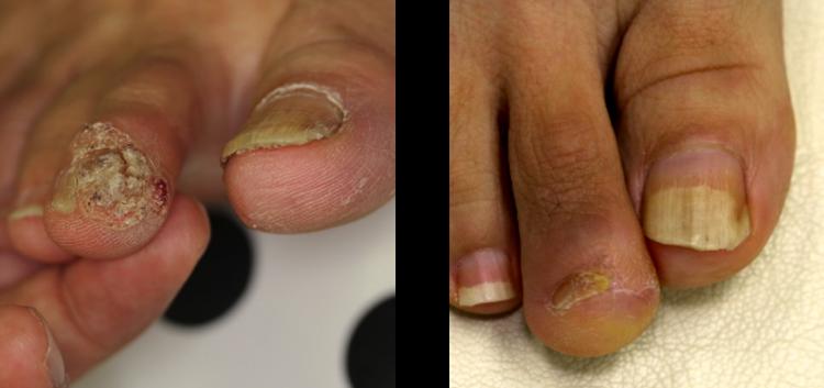 足の親指の尋常性疣贅