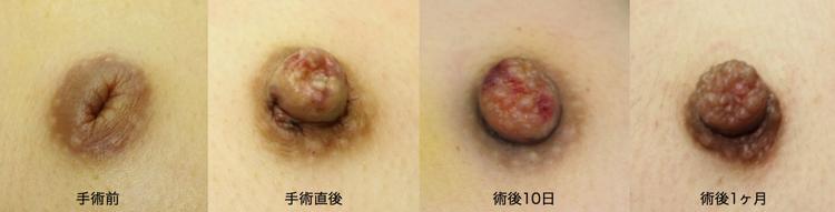 陥没乳頭,福岡,保険診療