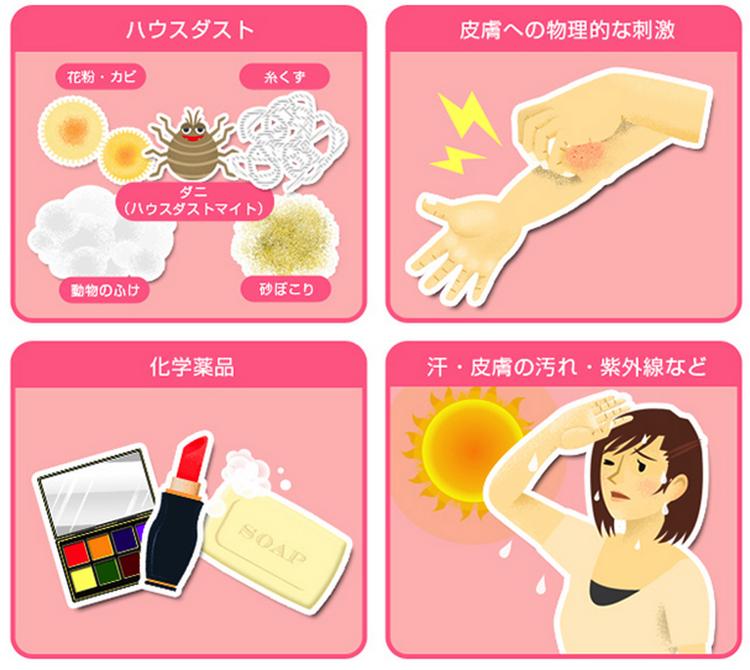 アトピー性皮膚炎とは |治療薬にも種類があるってご存知ですか |あなたにあったアトピー性皮膚炎治療を |マルホ株式会社