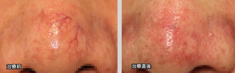福岡,赤アザ,毛細血管拡張症,写真