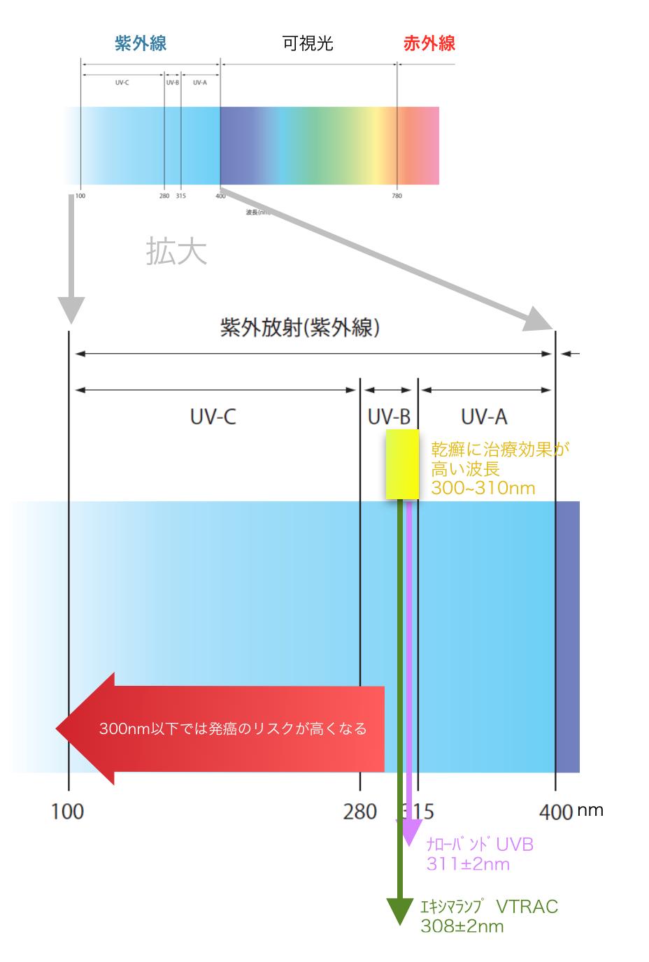 紫外線の治療波長