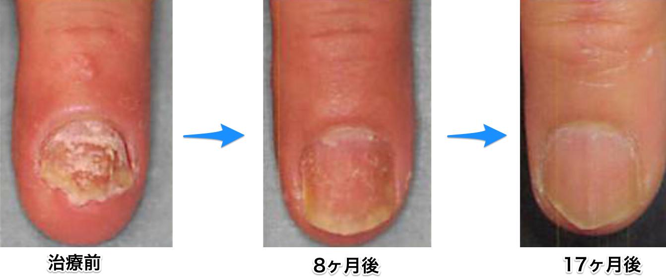爪乾癬 vtrac