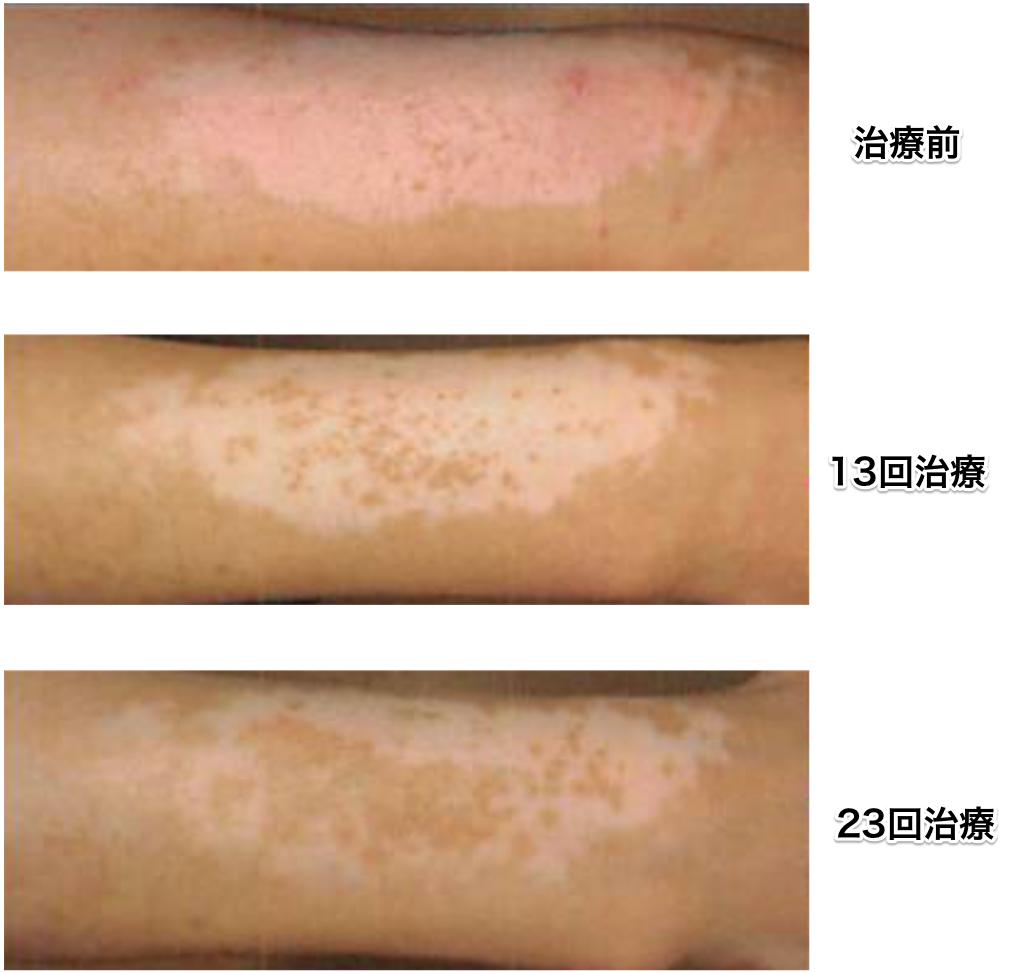 白斑の治療過程の写真