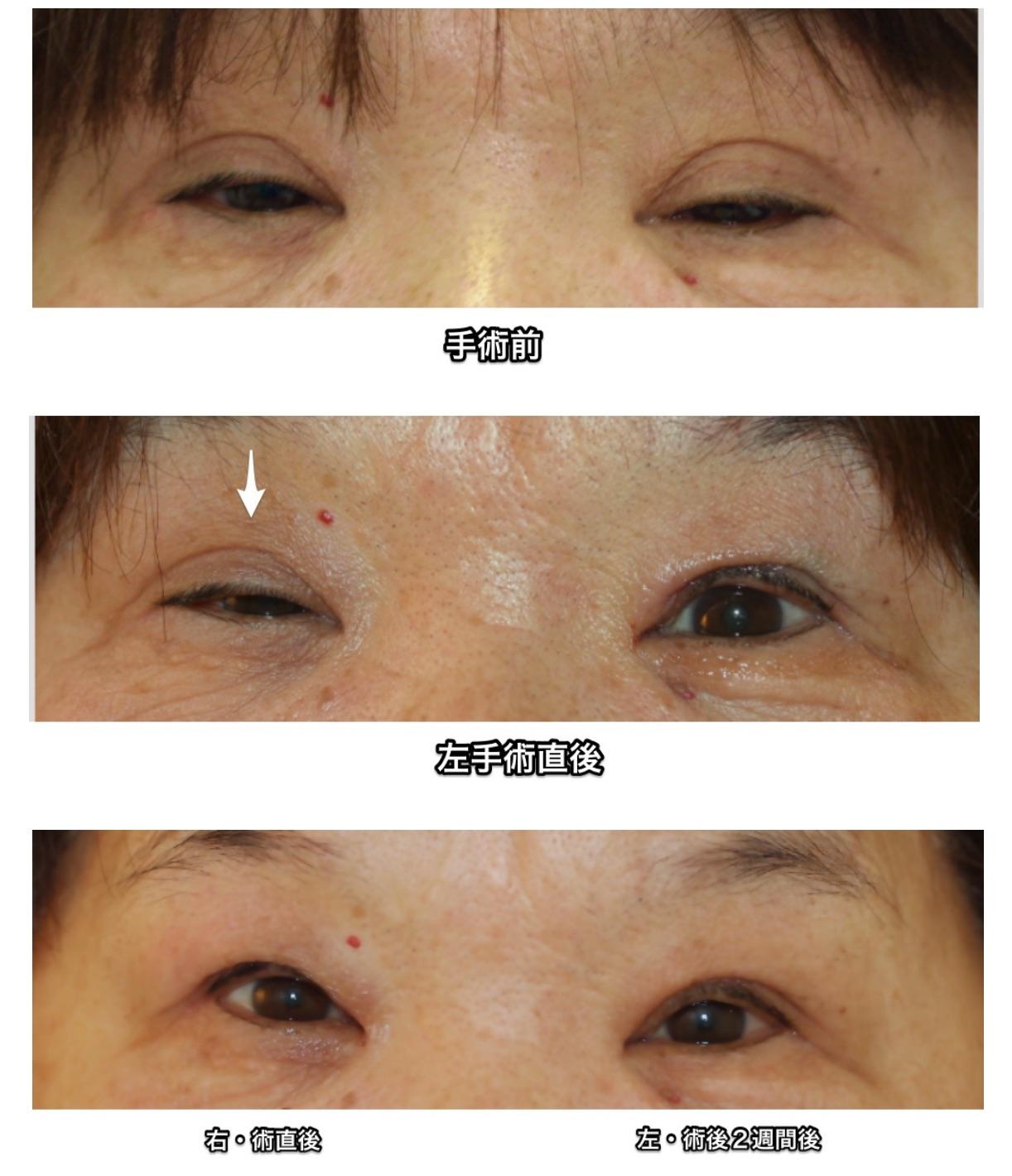 眼瞼下垂 術後経過