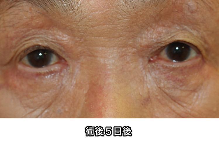 眼瞼下垂 手術後