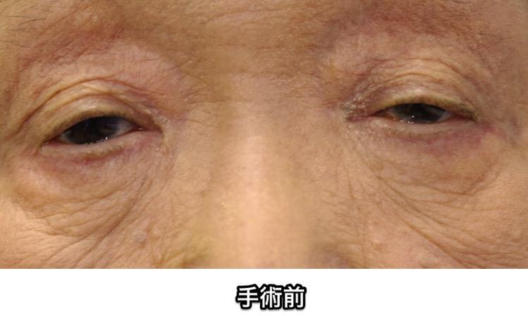 眼瞼下垂 手術前