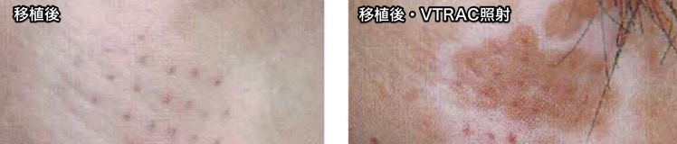 白斑のマイクロ移植