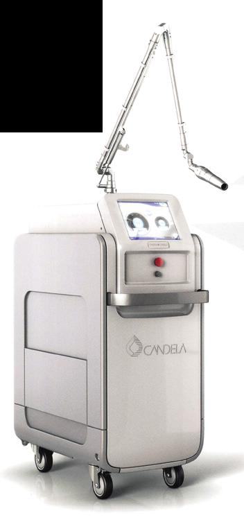 シミや刺青の治療に使用するピコレーザー(PicoWay)
