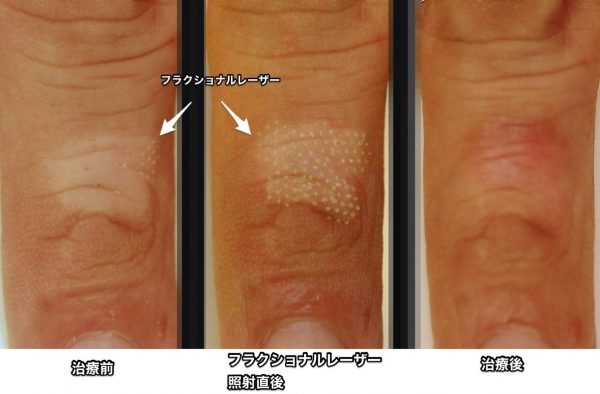白斑のフラクショナルレーザー治療
