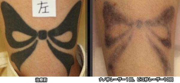 左下腿 刺青 ピコレーザー