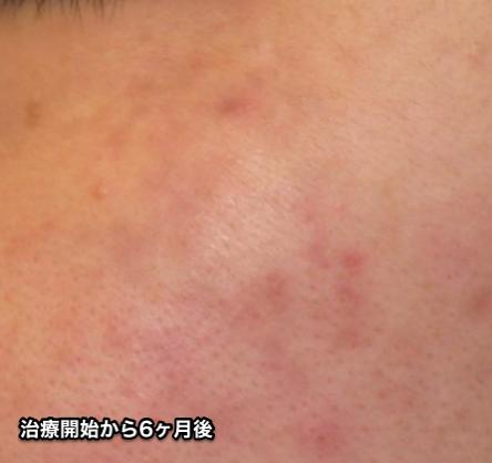 福岡,ADM,後天性真皮メラノサイトーシス,写真