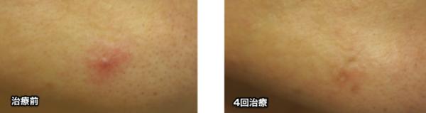 福岡,赤アザ,血管腫,写真