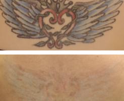 ピコレーザーによる背中の刺青治療