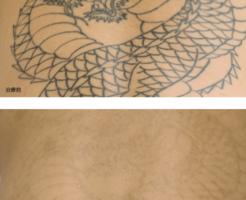 ピコレーザー,刺青除去
