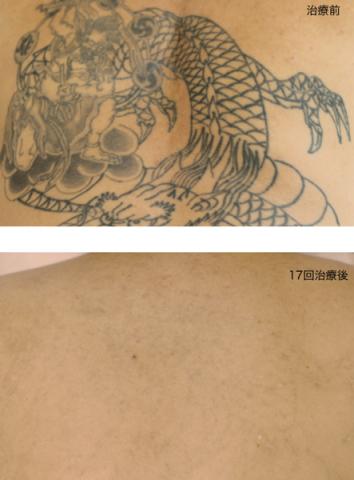 刺青除去,ピコレーザー,福岡