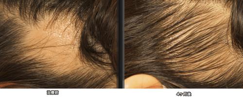 円形脱毛症の写真です