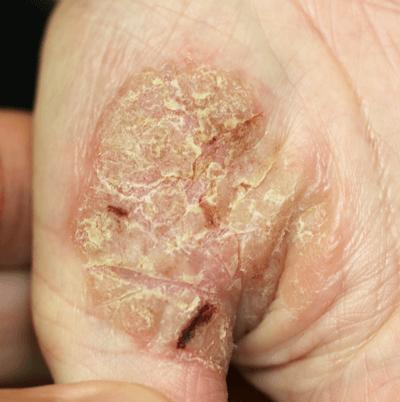 掌蹠膿疱症の写真