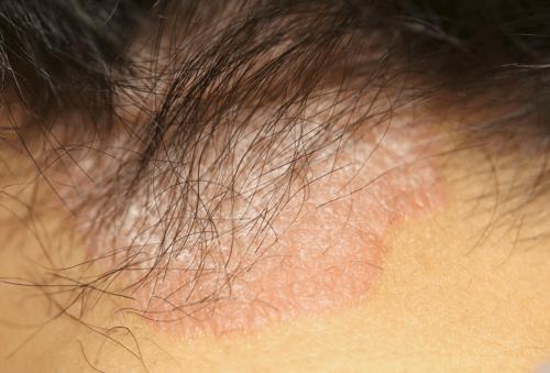 脂漏性皮膚炎の写真です
