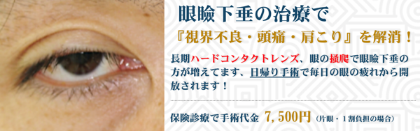 眼瞼下垂 新バナー